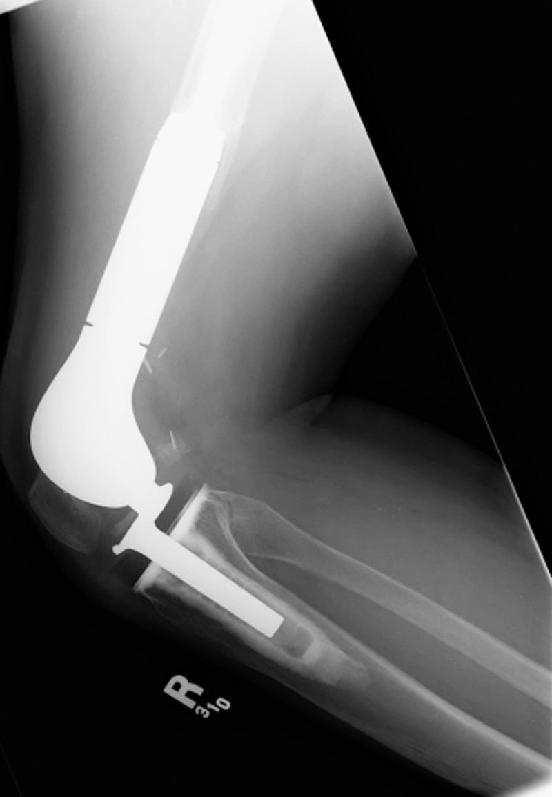 knee replacement surgery singapore
